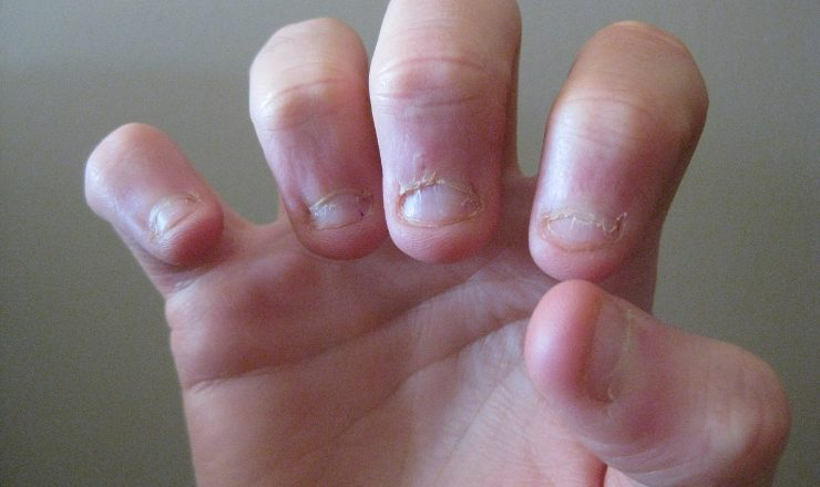 5 Reasons Why Nail Biting is Bad for You